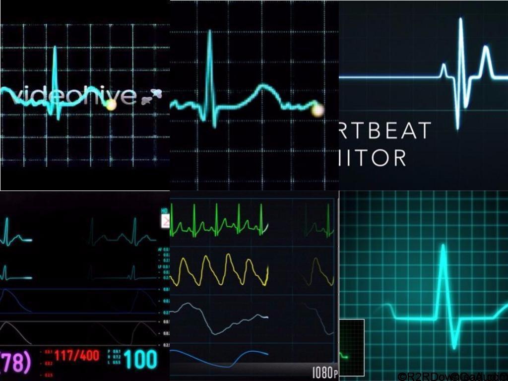 Videohive EKG Heartbeat Monitor Electrocardiogram Free Download
